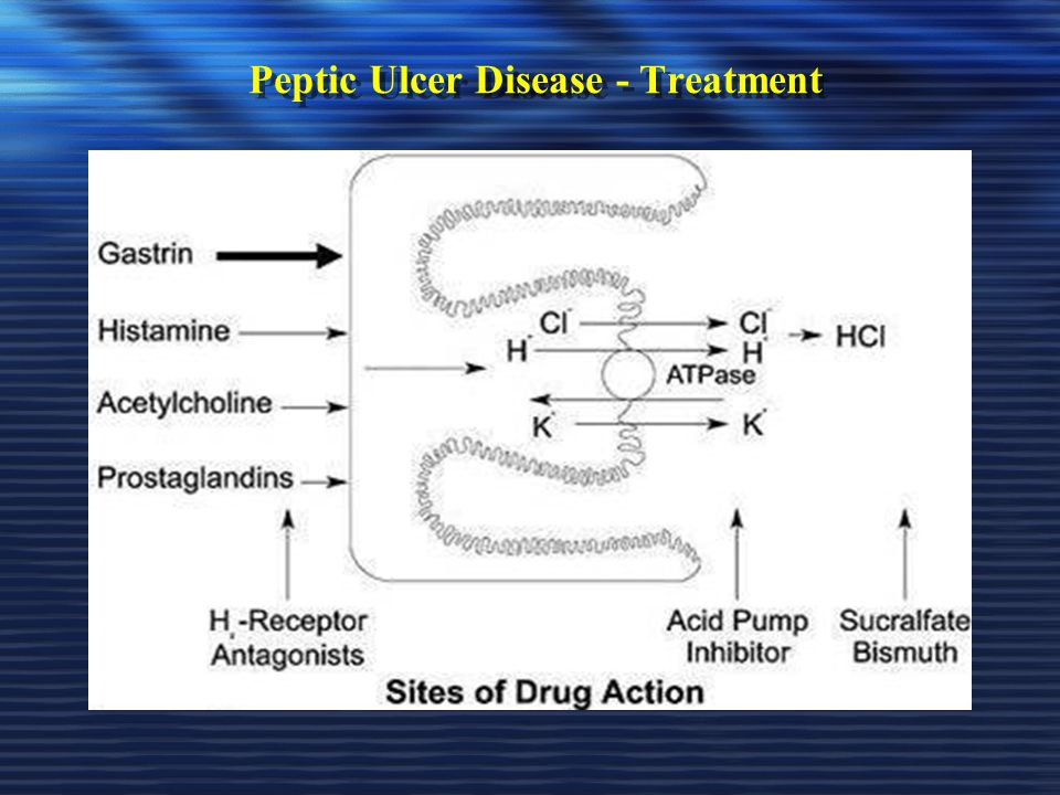 Peptic Ulcer Disease - Treatment