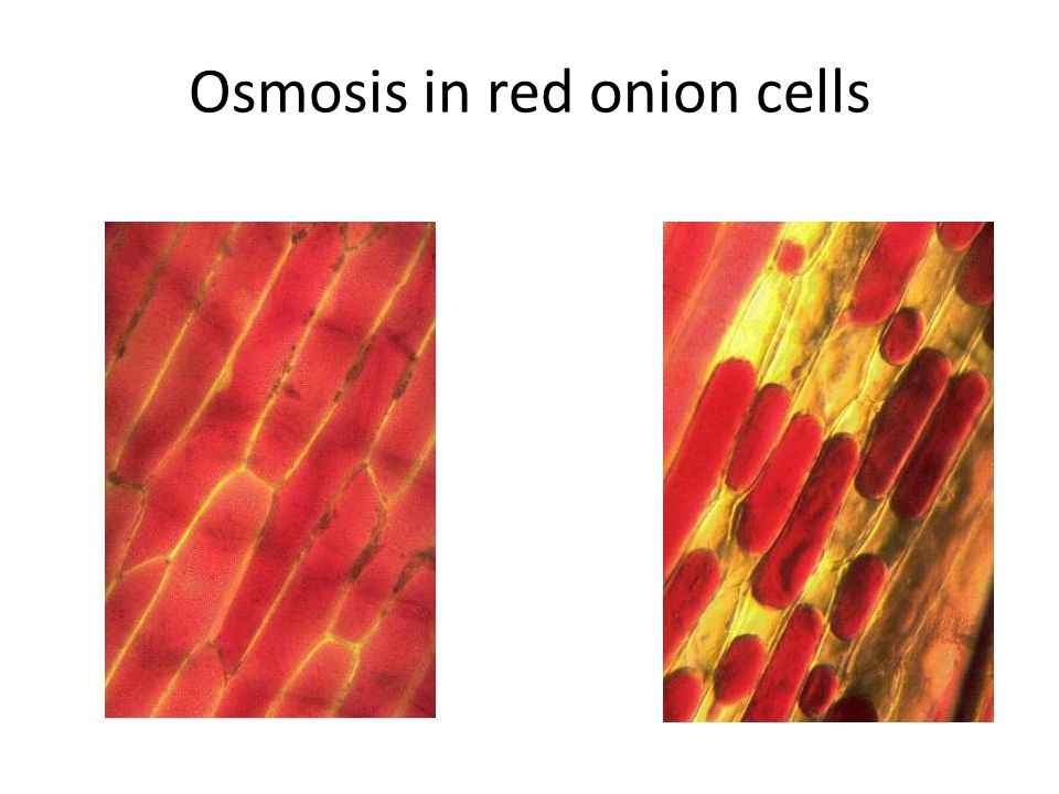 Osmosis in red onion cells