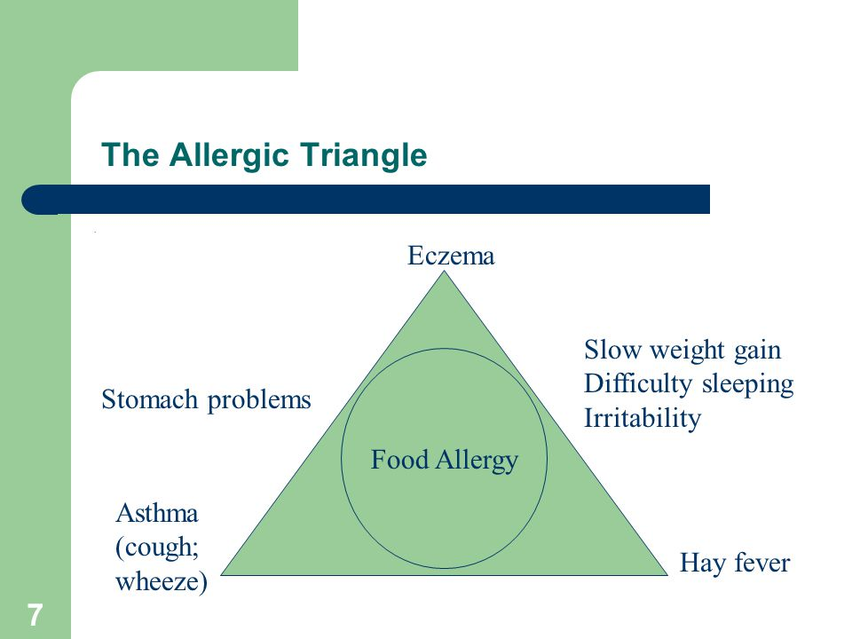 Image result for allergic triangle