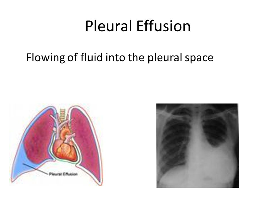 Pleural Effusion Flowing of fluid into the pleural space