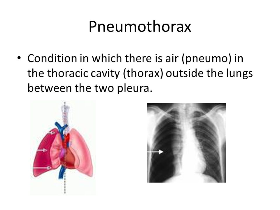 Pneumothorax Condition in which there is air (pneumo) in the thoracic cavity (thorax) outside the lungs between the two pleura.