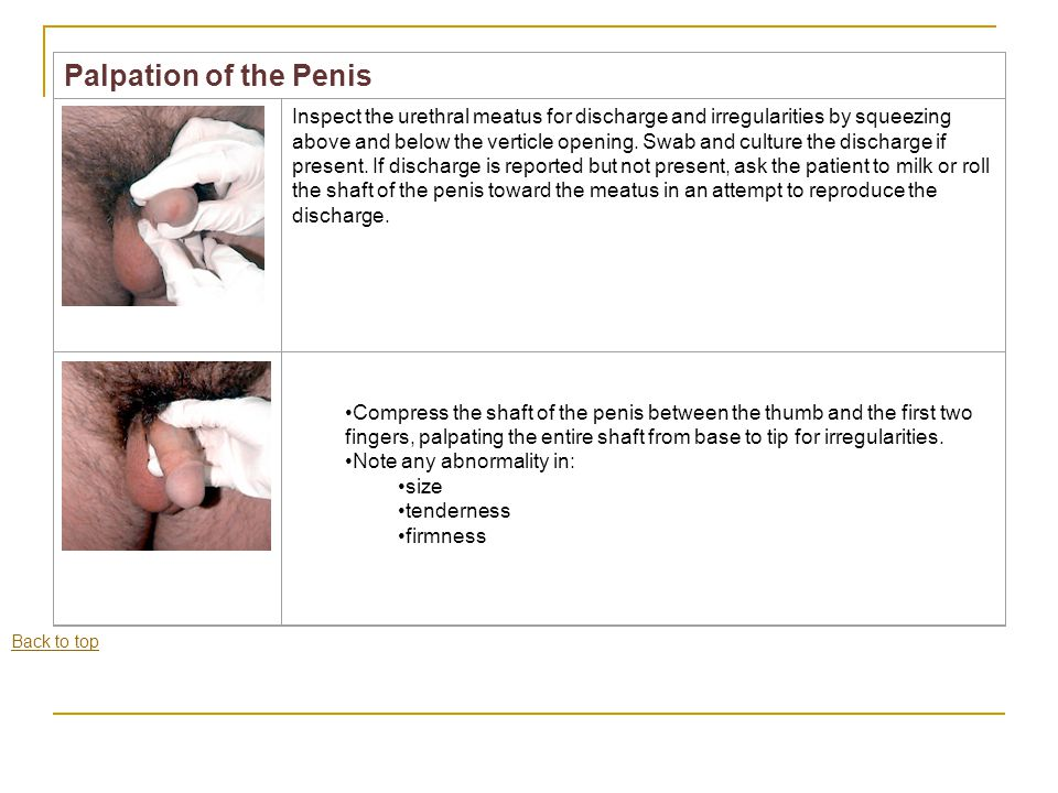 Palpation of the Penis