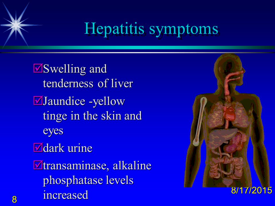 Hepatitis symptoms Swelling and tenderness of liver