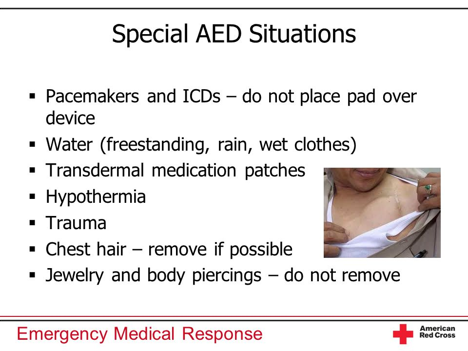 Cpr And Automated External Defibrillation Aed Ppt Video Online