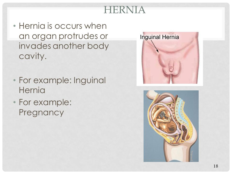 Hernia Hernia is occurs when an organ protrudes or invades another body cavity. For example: Inguinal Hernia.