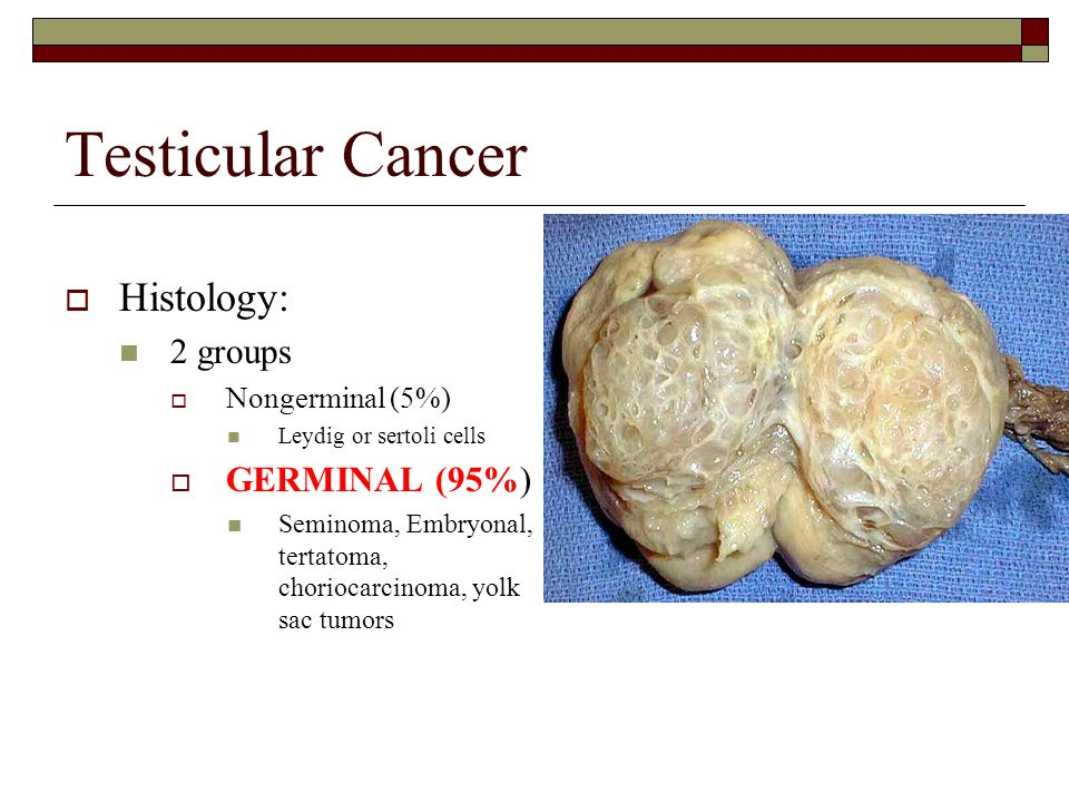Evaluation Of Testicular Disorders Ppt Video Online Download