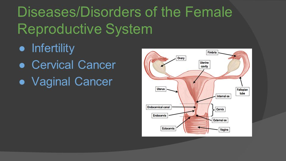 Vaginal canal cancer