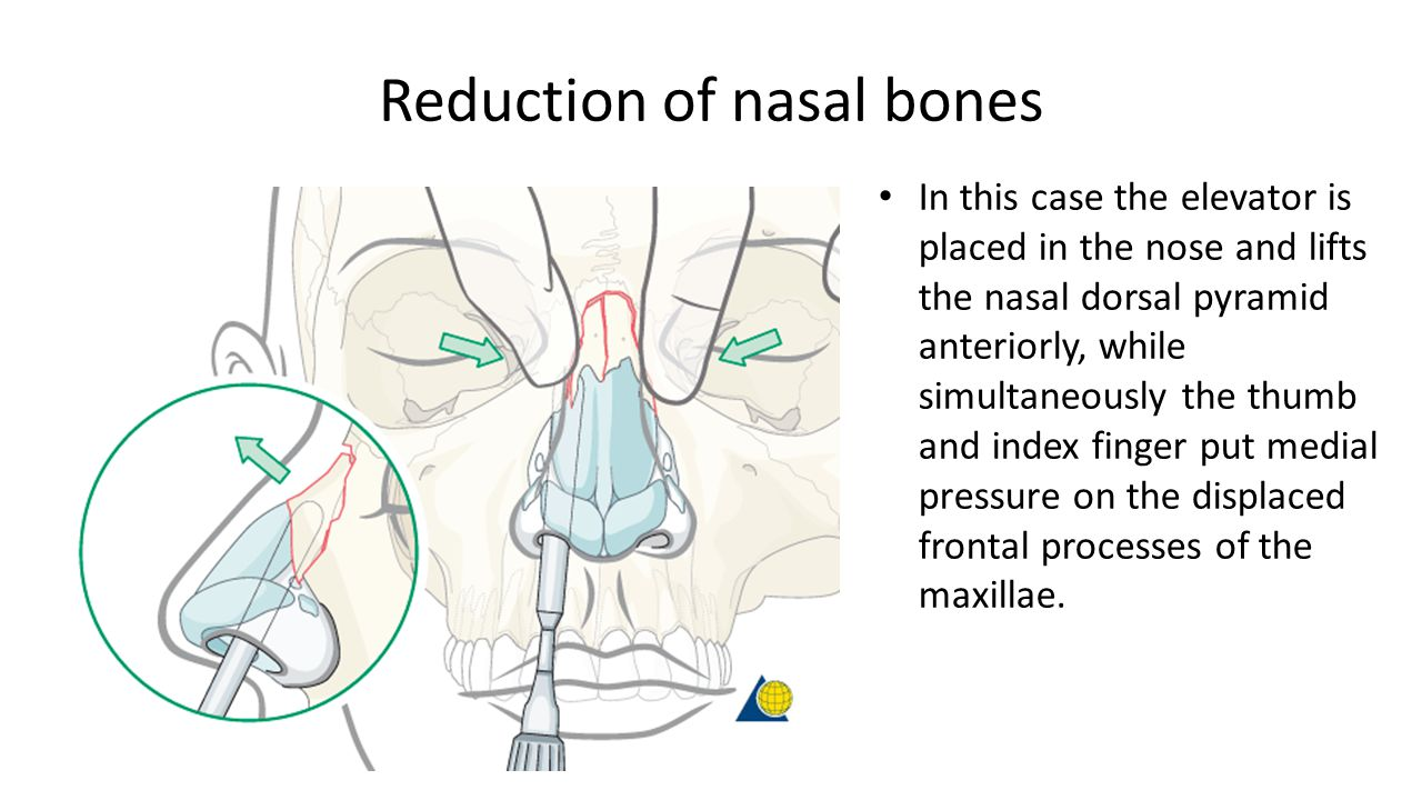 Management Of Fracture Of The Nasal Bones Ppt Video Online Download