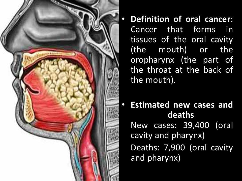 Definition of oral cancer: Cancer that forms in tissues of the oral cavity (the mouth) or the oropharynx (the part of the throat at the back of the mouth).
