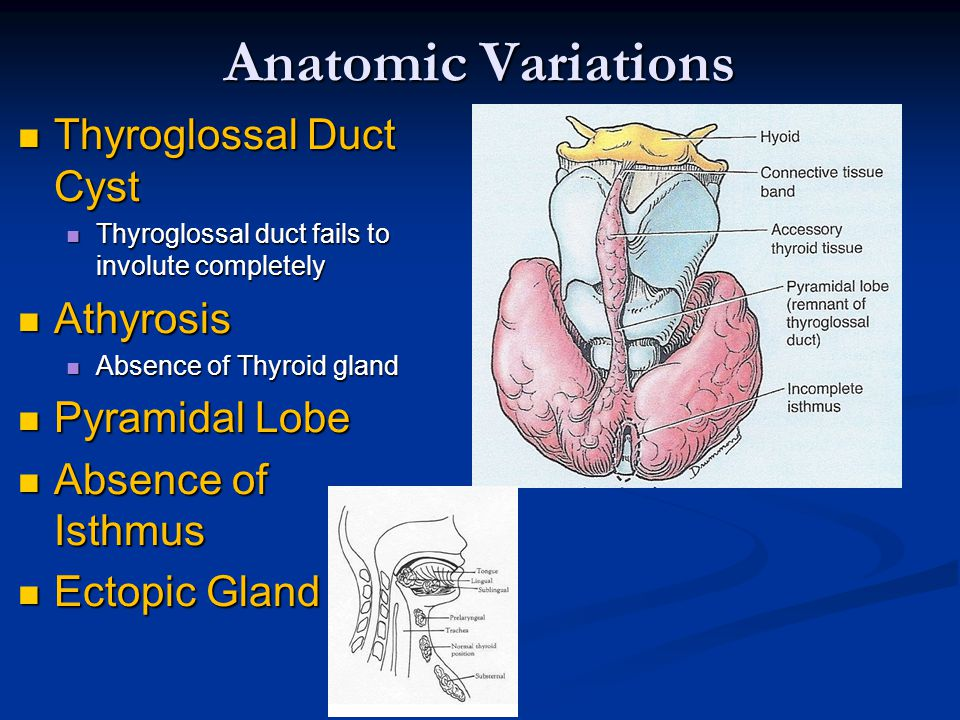 Thyroid Parathyroid And Neck Ppt Video Online Download
