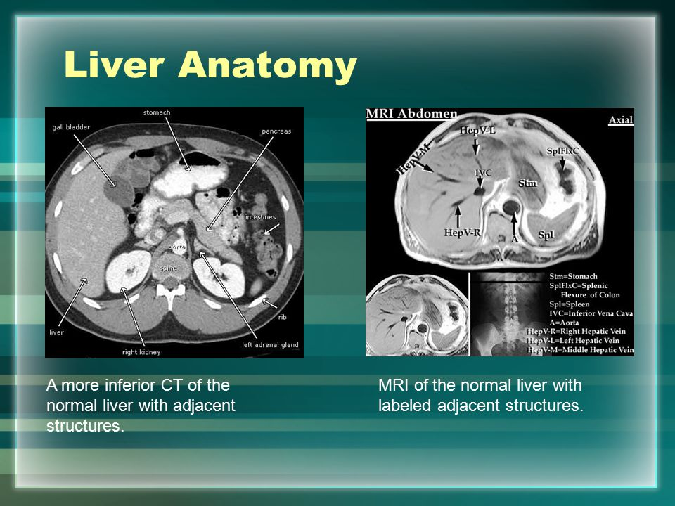 Common Findings In Liver Imaging Ppt Video Online Download