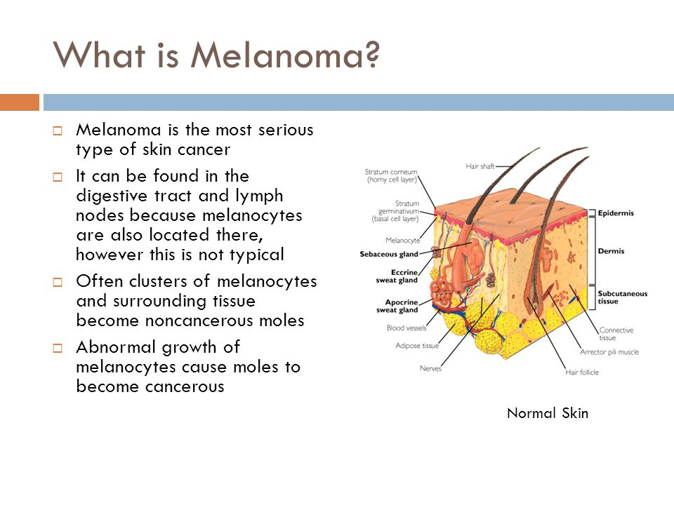 What is Melanoma Melanoma is the most serious type of skin cancer