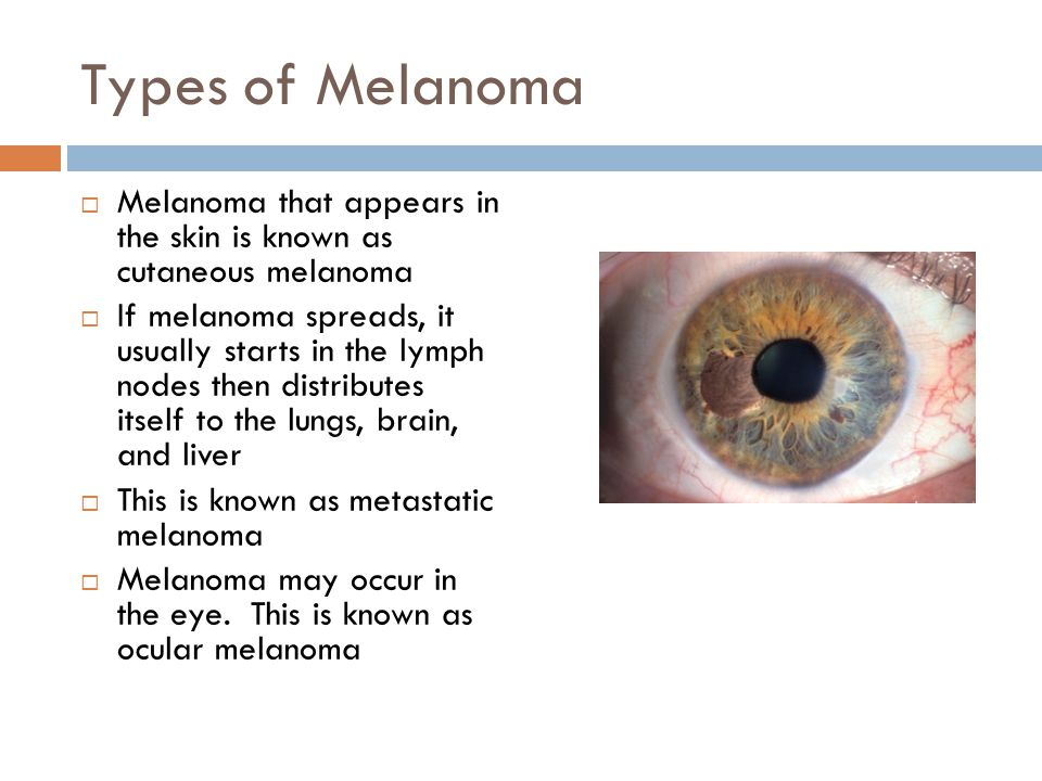 Types of Melanoma Melanoma that appears in the skin is known as cutaneous melanoma.