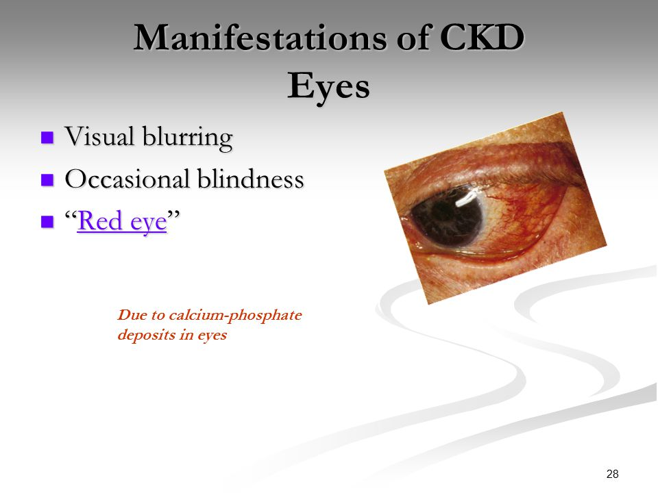 CKD/ESRD & Management Note-when viewing lab values in PPT