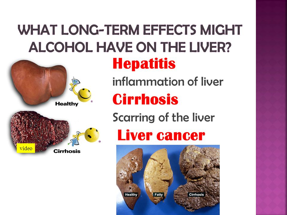 What long-term effects might alcohol have on the liver