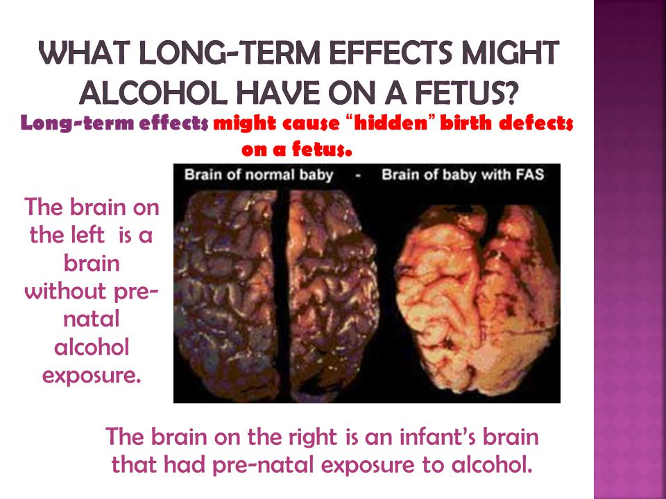 What long-term effects might alcohol have on a fetus