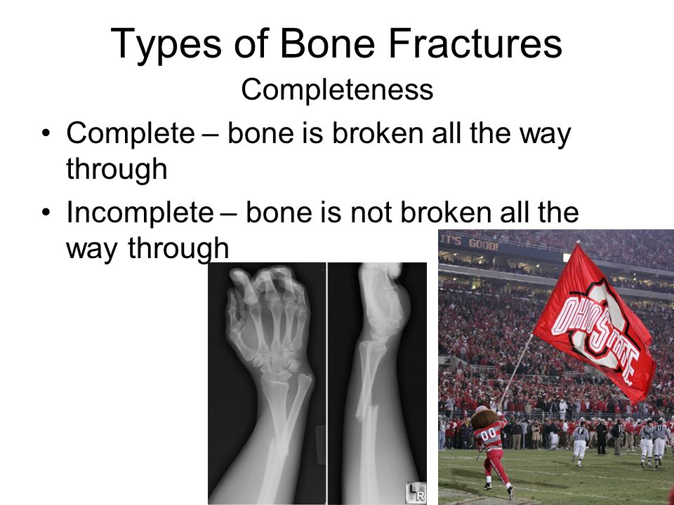 Describe Different Types Of Fractures Remember The Good Times Ppt
