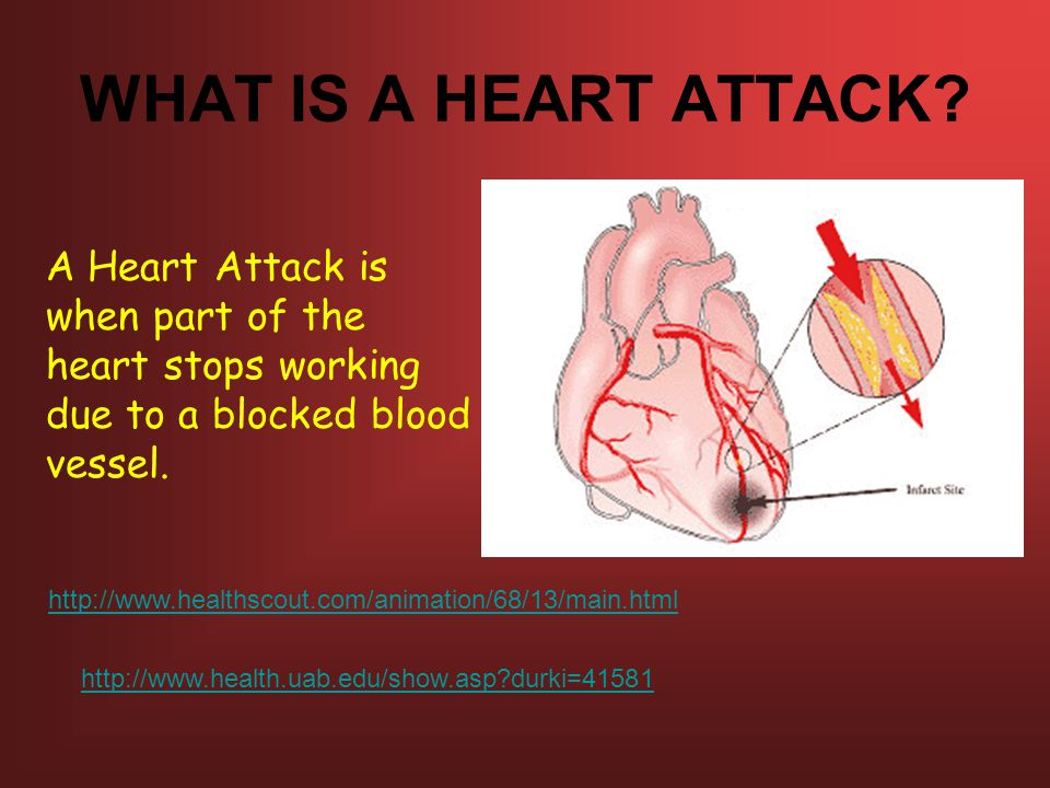 WHAT IS A HEART ATTACK A Heart Attack is when part of the heart stops working due to a blocked blood vessel.