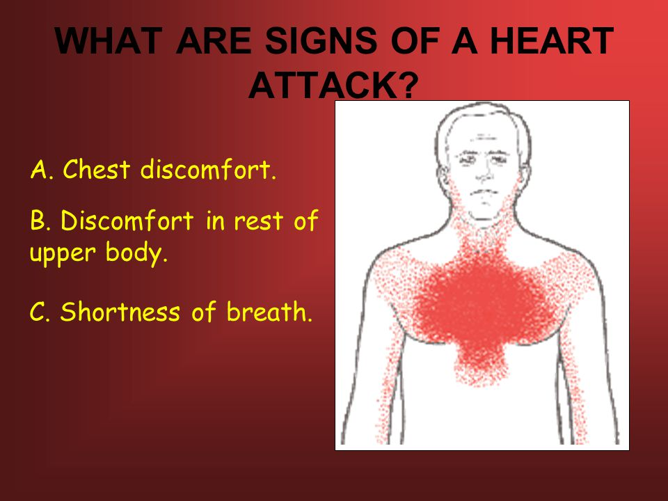WHAT ARE SIGNS OF A HEART ATTACK