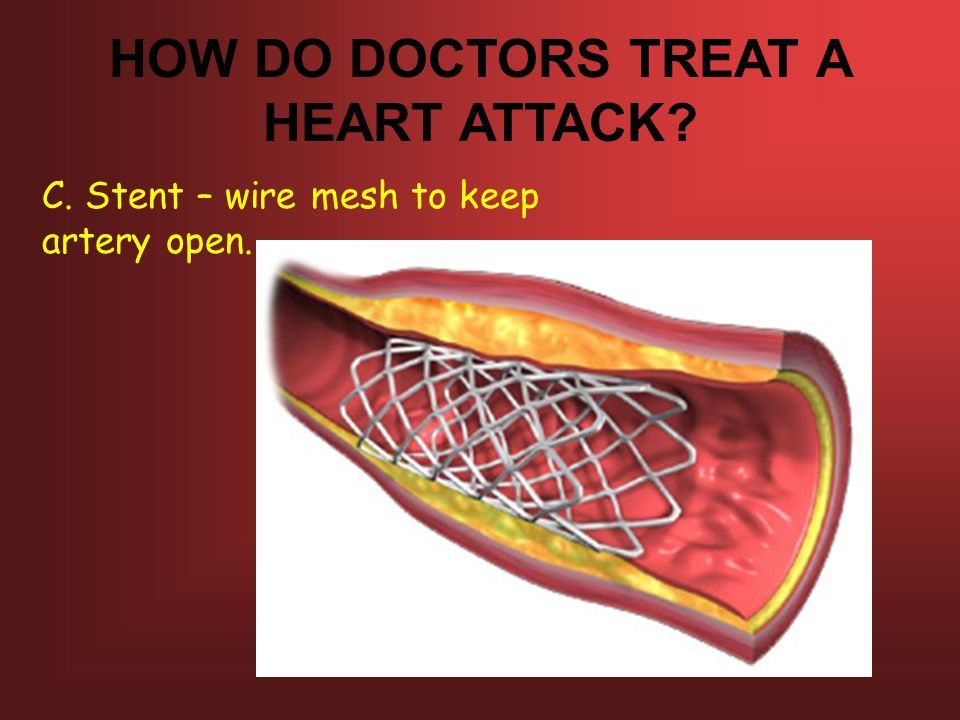 HOW DO DOCTORS TREAT A HEART ATTACK