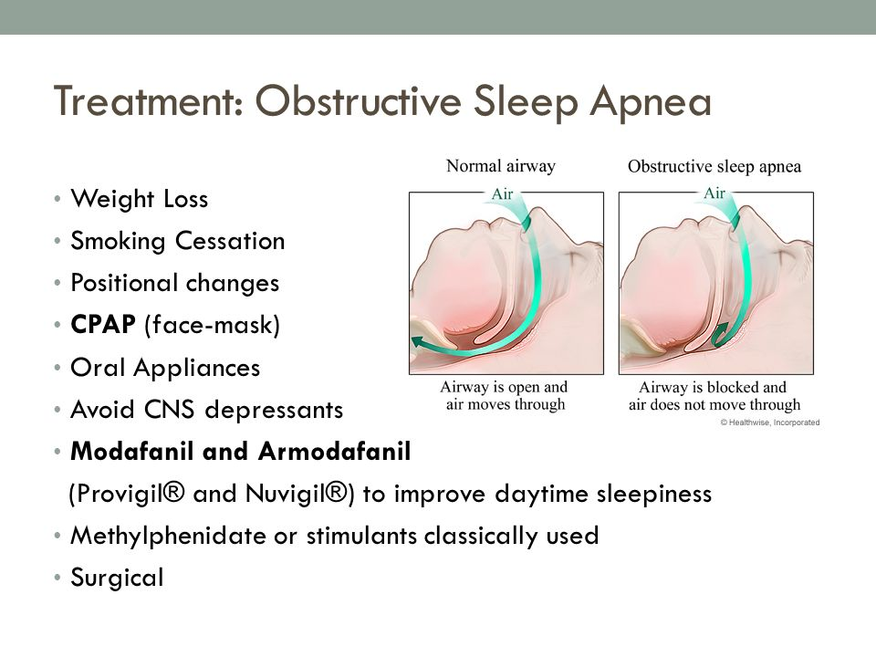 Insomnia Sleep Disorders Ppt Video Online Download