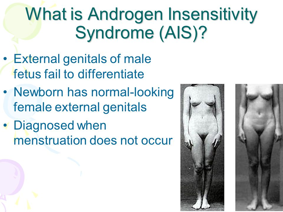 What is Androgen Insensitivity Syndrome (AIS)