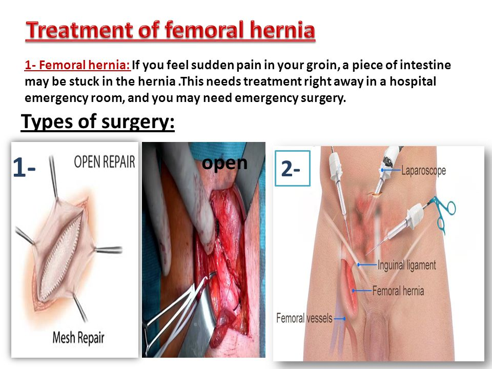 Nice Anatomy Of Femoral Hernia Images - Human Anatomy Images ...