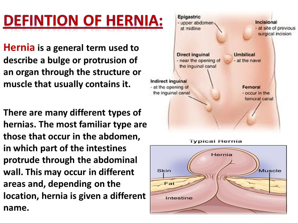 Hernia and its related anatomy - ppt video online download