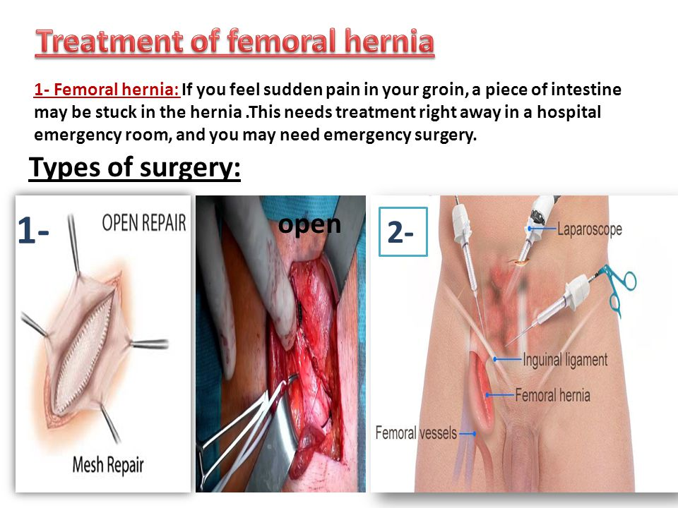 Inguinal Hernia Surgical Anatomy Gallery - human body anatomy