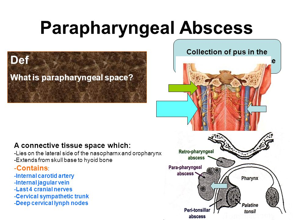Infection Of Pharyngeal Spaces Ppt Video Online Download