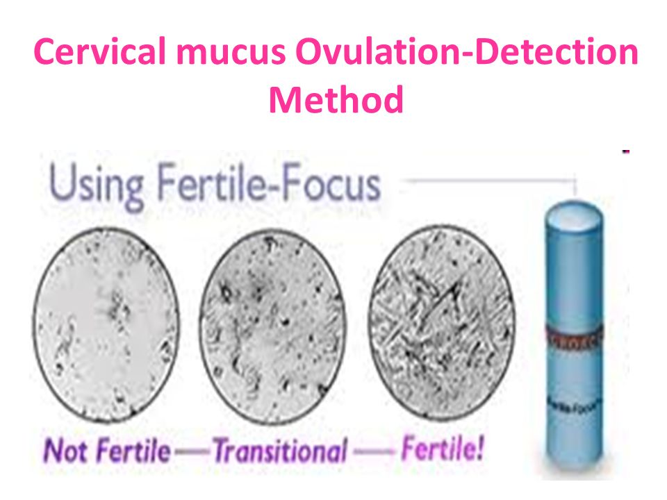Infertility and Family planning - ppt video online download
