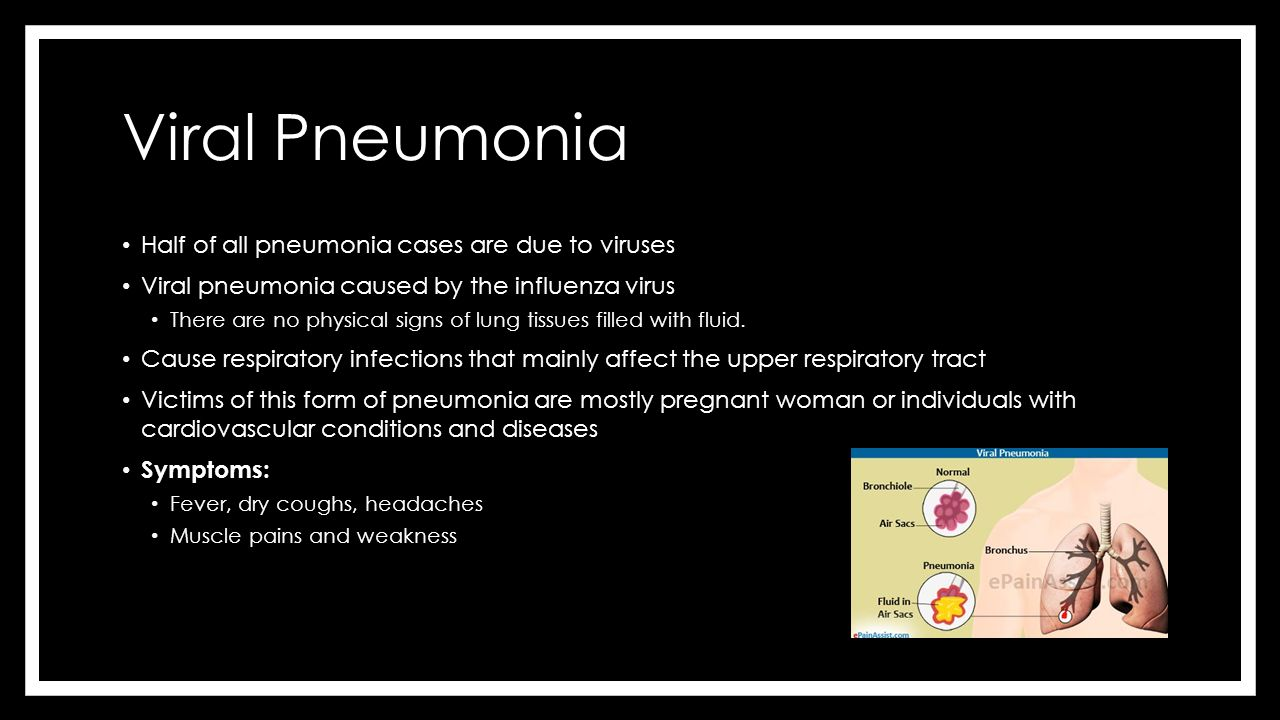 Viral pneumonia: symptoms and treatment. Viral pneumonia: symptoms in children 83