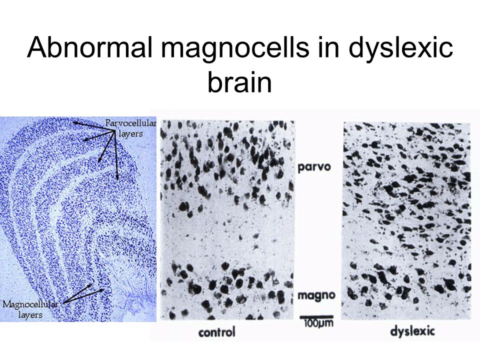 Abnormal magnocells in dyslexic brain