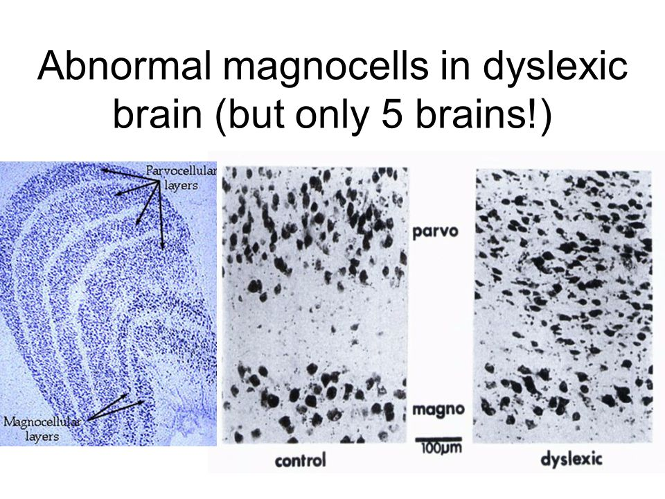 Abnormal magnocells in dyslexic brain (but only 5 brains!)