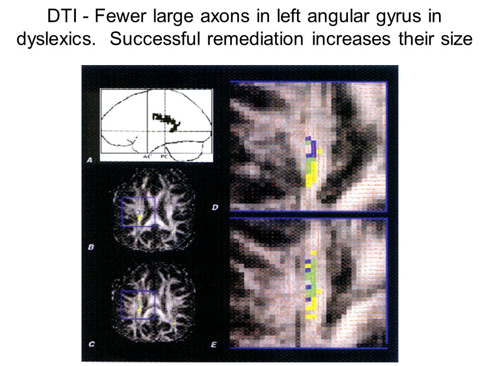 DTI - Fewer large axons in left angular gyrus in dyslexics