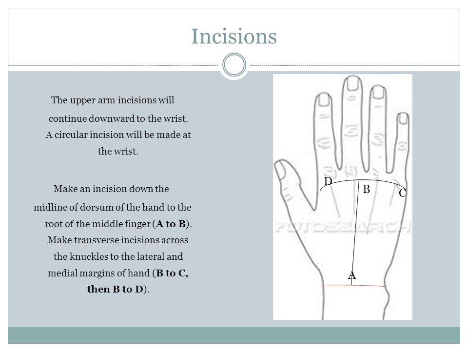 Surface Anatomy And Skin Incisions For Posterior Forearm And Dorsum