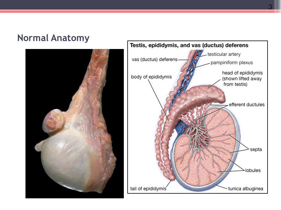 Testicular Pathology Emad Raddaoui Md Fcap Fasc Ppt Download