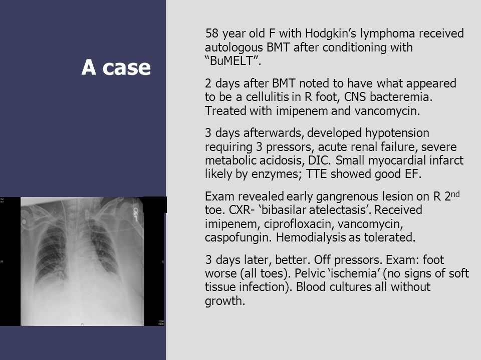 58 year old F with Hodgkin's lymphoma received autologous BMT after conditioning with BuMELT .