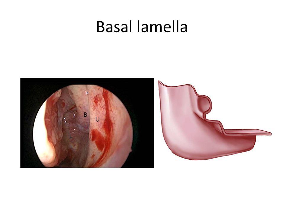 Basal Lamella B U L