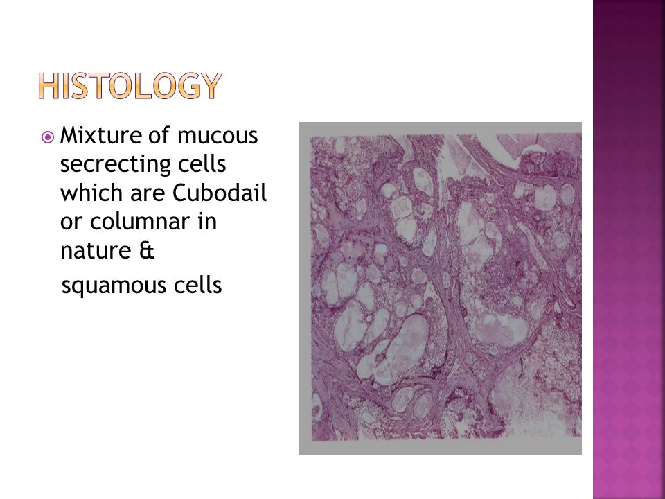 Histology Mixture of mucous secrecting cells which are Cubodail or columnar in nature & squamous cells.