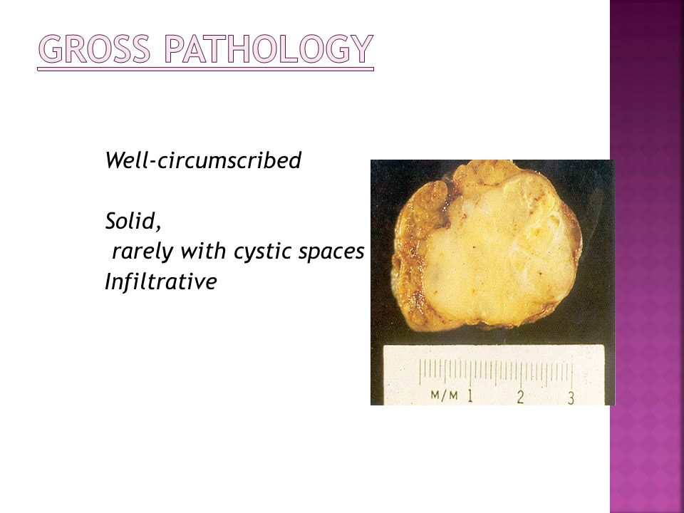 Gross pathology Well-circumscribed Solid, rarely with cystic spaces