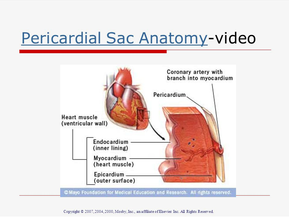 Inflammatory Disorders Of The Heart Ppt Download