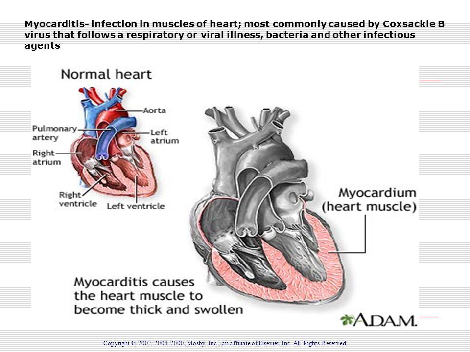 5 modes of disease transmission-5292