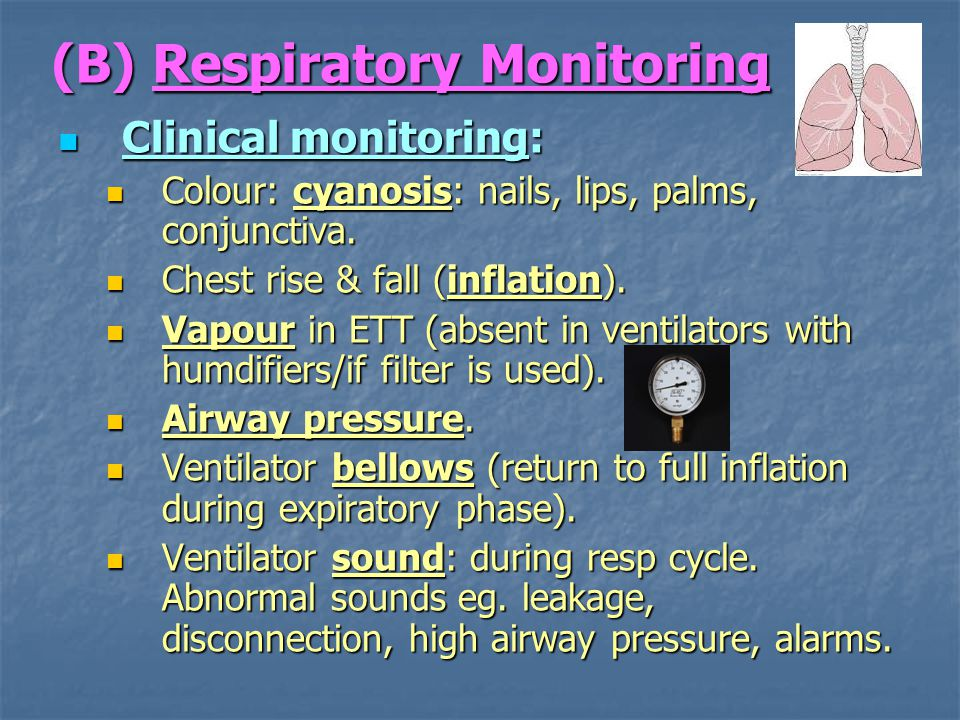 Intraoperative Monitoring - ppt download