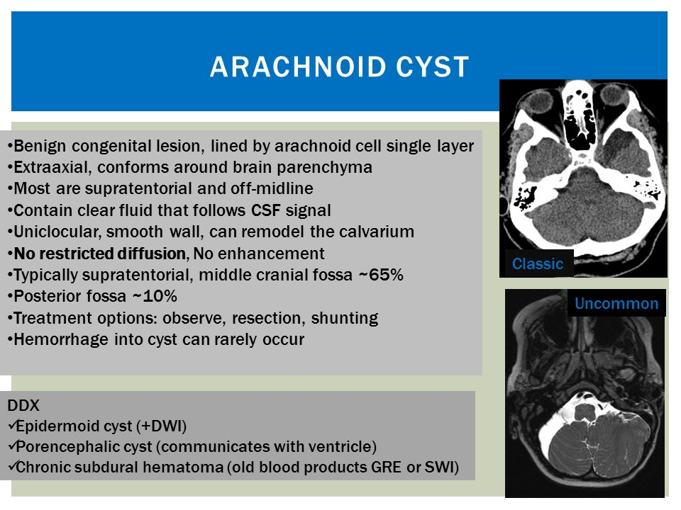 "Guide to intracranial cysts: A ""Cyst-o-matic"" approach - ppt"