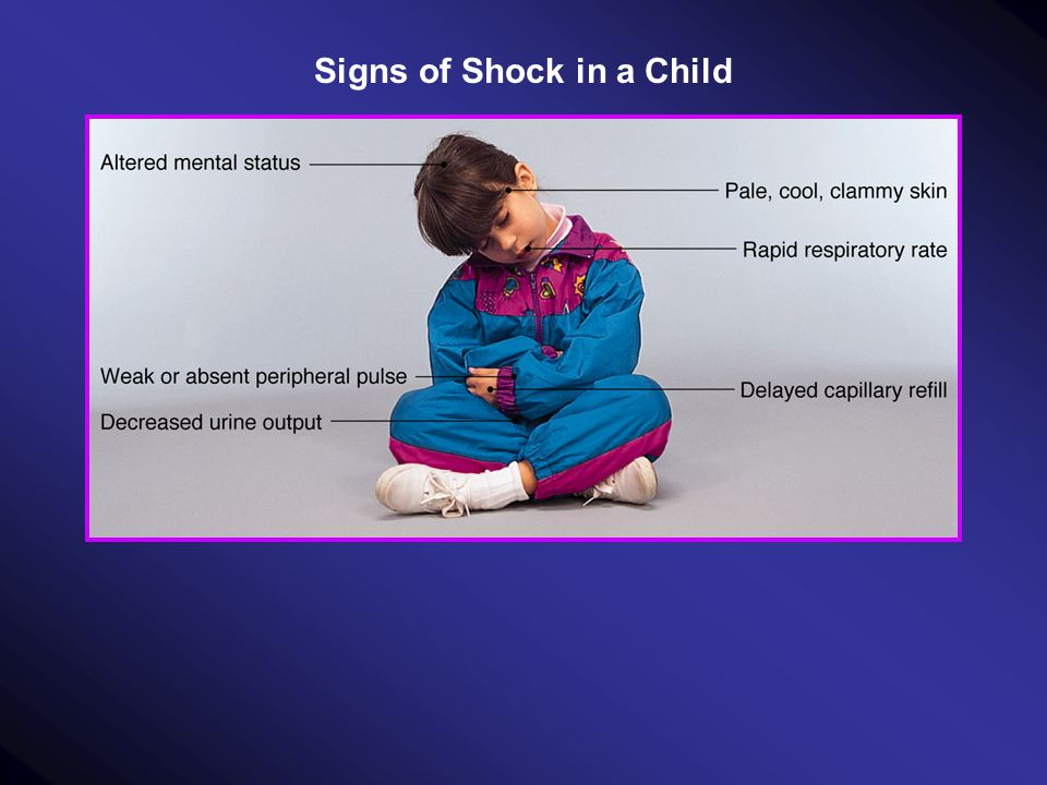 Signs of Shock in a Child