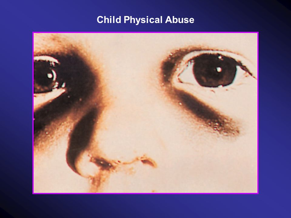 Child Physical Abuse
