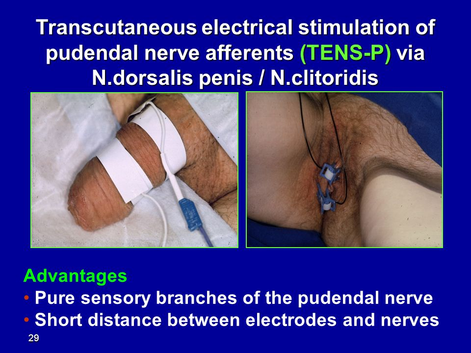 of penis stimulation Electric