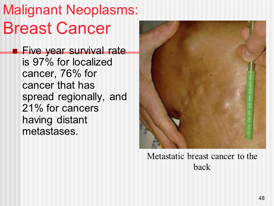 breast tumor Malignant