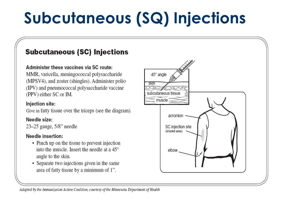 Diagram Of Subcutaneous Injection Sites Electrical Drawing Wiring